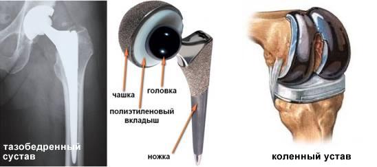 Эндопротез суставов цена остеоартроз тазобедренных суставов 2 степени
